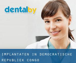 Implantaten in Democratische Republiek Congo
